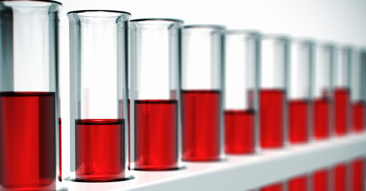Shore Medical Center - Putative Class Action (Blood Samples Stock Photo)